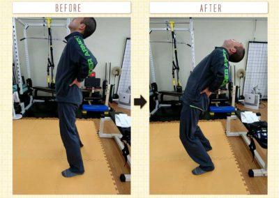 ぎっくり腰後の後屈可動改善2