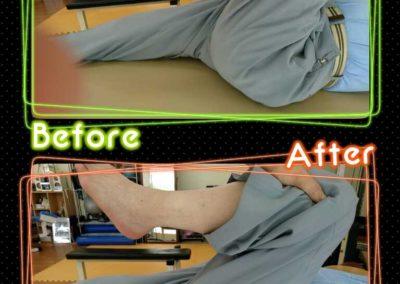股関節の可動域の変化2
