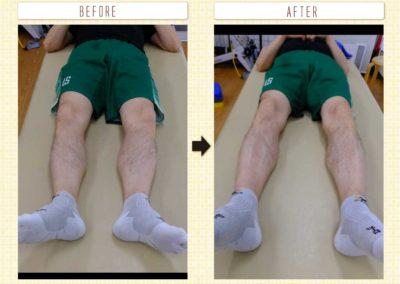 足のラインの改善