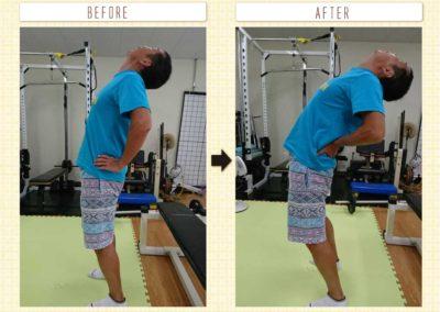 ぎっくり腰後の後屈可動改善