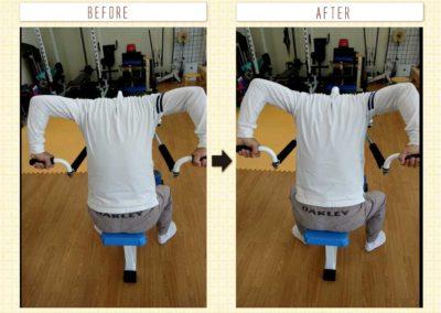 肩関節の可動域変化