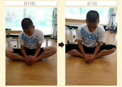 股関節の歪み改善