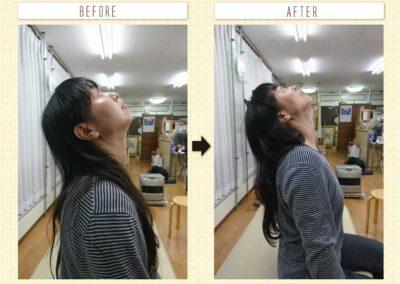 首の可動域変化